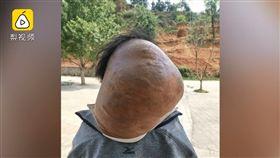 中國大陸老伯頸上長了巨大腫瘤(圖/翻攝自梨視頻)