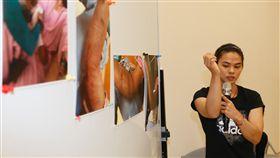 宣布引退 許淑淨高雄說明原因(2)台灣兩屆舉重奧運金牌女將許淑淨3日透過臉書宣布引退,震驚體壇,許淑淨4日親自在高雄出席記者會,展示手肘傷勢及治療過程照片,詳細說明決心引退原因。中央社記者董俊志攝 107年6月4日