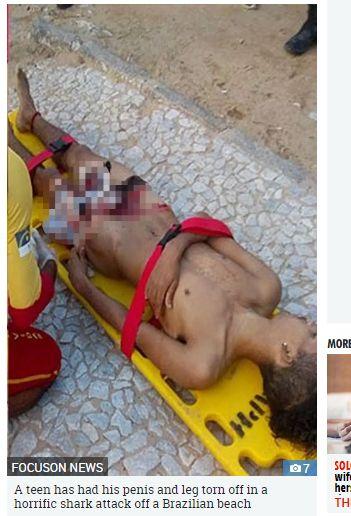 巴西18歲少年陰莖被鯊魚咬掉/太陽報