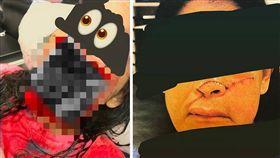 一名女子在路上被人用彎刀襲擊,鼻子幾乎都被削下來,但她卻冷靜地拉著「半張臉」,被人送往醫院。最後女子透過手術,達到零張力的縫合,面部恢復的相當好。(圖/翻攝自微博)