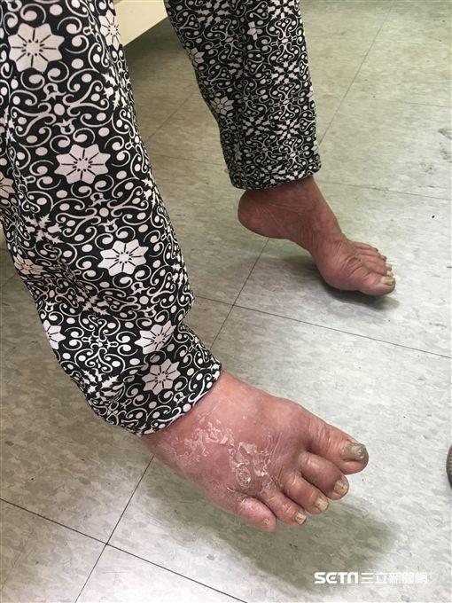 高齡88歲的陳阿嬤習慣赤腳走路,由於其足部的皮膚狀況不佳,使得細菌入侵右腳掌而引起蜂窩性組織炎。(圖/南投醫院提供)