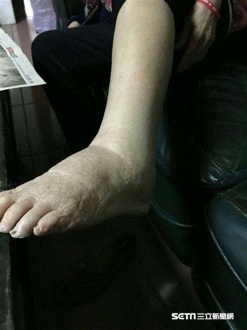 劉奶奶治療前照片(腿腫脹)。(圖/國泰醫院提供)