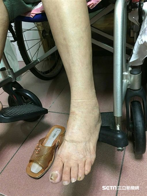 劉奶奶治療後照片,腿已消腫。(圖/國泰醫院提供)