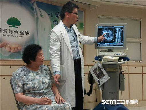 國泰醫院心血管中心醫師張嘉修(右)模擬示範為劉奶奶進行血管內超音波檢查。(圖/國泰醫院提供)