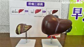 肝病三部曲,「肝炎、肝硬化、肝癌」(圖/記者楊晴雯攝)