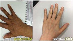 亞洲大學附屬醫院新陳代謝科主治醫師徐盛邦說,「原發性腎上腺機能不全」在身體表現最明顯的是黑色素增加。(圖/亞洲大學附屬醫院提供)