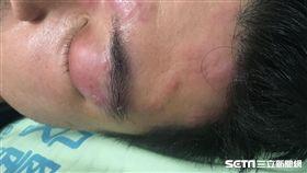 南投醫院皮膚科醫師李瑜芬說,目前尚無文獻研究指出民俗療法「斬蛇」能夠治癒帶狀皰疹。(圖/南投醫院提供)