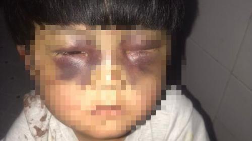 ▲女童眼周腫脹幾乎無法睜眼(圖/翻攝自貴陽頭條排行榜微博)