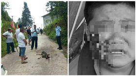 大陸一男童遭惡犬撕咬,臉頰幾乎被挖空(圖/翻攝自《網 易新聞) http://news.163.com/18/0615/09/DKB4QBT90001875P.html
