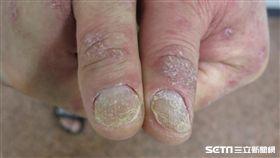 乾癬除了皮膚症狀外,還可能有關節炎、心血管問題等共病發生,患者要有長期抗戰的決心,接受正規治療且至少10年內都要定期追蹤。(圖/中山大學附設醫院皮膚科主任蕭玉屏提供)
