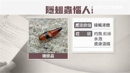 隱翅蟲、被隱翅蟲毒液噴到紅腫/資料照