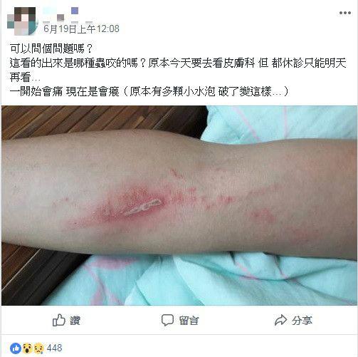 隱翅蟲、被隱翅蟲毒液噴到紅腫/臉書爆廢公社公開版