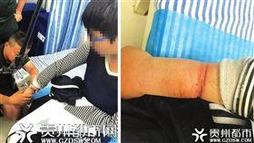 大陸貴州一名14歲少年因為好奇,將一副廢棄手銬銬在右手上,沒想到手銬壞掉開不起來,他整整被銬了1年多才告訴家人,導致他的手腫如「小叮噹」的手臂。所幸少年就醫後,手銬成功被剪斷,沒有大礙。(圖/翻攝自微博)