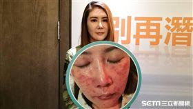 蔡小姐罹患酒糟性皮膚炎,滿臉皮膚泛紅且雙頰遍佈丘疹,最後使用新型藥膏,泛紅程度明顯改善。(圖/記者楊晴雯攝)