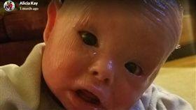 美國1歲童全身長滿堅硬魚鱗 泡漂白水才能活下去(圖/翻攝自GoFundMe官網)