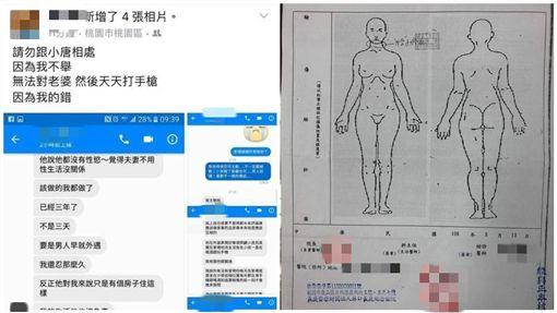 網紅空姐反控被家暴 曬驗傷單/當事人臉書