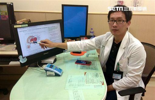 安南醫院,泌尿科,林育緯,腎上腺腫瘤,病人,高血壓,血壓圖/安南醫院