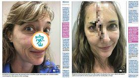 美國女子不塗防曬乳鼻子上燒出凹洞,皮膚癌(圖/翻攝自每日郵報) http://www.dailymail.co.uk/health/article-5899799/Tanning-addict-enjoys-burnt-discovered-pimple-nose-turned-skin-cancer.html