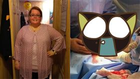 Kayla Rahn,卵巢囊腫,粘液性囊腺瘤,肥胖,減重,懷孕,Taco Bell,腫瘤,體重 圖/翻攝自推特 https://goo.gl/xETnkv