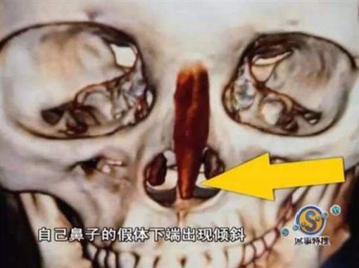 整形失敗「鼻子下巴歪掉」…女含淚抗議 院方:那你去跳樓翻攝《看看新聞》