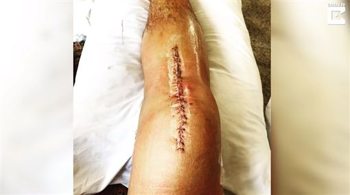 男懸崖跳水GG了…右膝蓋「炸開」韌帶噴出來(圖/翻攝YouTube)