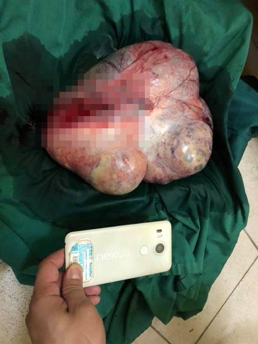 林孝祖到巴布亞紐幾內亞義診,開刀取出「半公尺超大卵巢瘤」(圖/翻攝自林孝祖醫師臉書)