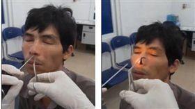 越南乂安省一名男子日前發覺自己呼吸困難,鼻孔還出現一種「被舔穴道」的感覺,相當不舒服。男子就醫檢查後,醫師竟從他鼻孔拉出一條活生生的水蛭!(圖/翻攝自每日郵報)
