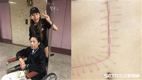 辣妹舞者「腹留L字疤」 捐6成肝救昏迷19天阿姨 圖/高雄長庚提供
