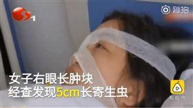 大陸女子右眼取出5公分寄生蟲。(圖/翻攝自秒拍)