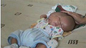 印尼媽媽產下一名連體嬰,醫生照三次超音波都沒發現。(圖/翻攝自每日郵報)