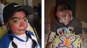 美國「泡泡龍」女孩,積極面對罕見疾病。(圖/翻攝自每日郵報)