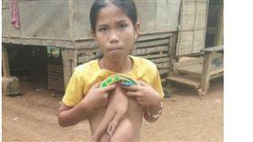 菲律賓少女肚子上長出一雙手。(圖/翻攝自GMA NEWS)