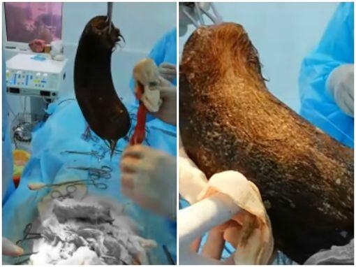 哈薩克女童吃頭髮,開刀挖出3.5公斤毛球/YouTube