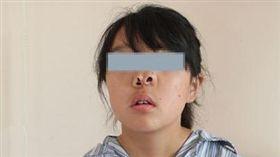 少女天生有3鼻孔 長年卻只能靠嘴呼吸(圖/翻攝自澎湃新聞)