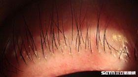 張女士睫毛常有白色屑屑,竟是毛囊蠕形螨蟲在睫毛根部蠕動。(圖/台北慈濟醫院提供)