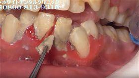 張嘴嚇死人!25歲女滿口結石 醫洗牙「鑽除爆血」超療癒 圖翻攝自 ザ・ホワイトデンタルクリニック YOUTUBE