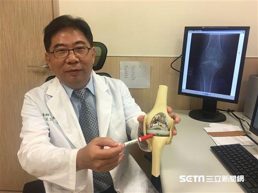 亞大醫院骨科部副主任唐國民指出血友病患者容易出血部位。(圖/亞大醫院提供)
