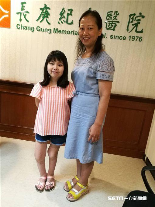 20歲黃小姐(左)罹患小兒原發性關節炎合併虹彩炎,身高僅130公分,因延誤治療不幸造成左眼全盲。(圖/記者楊晴雯)