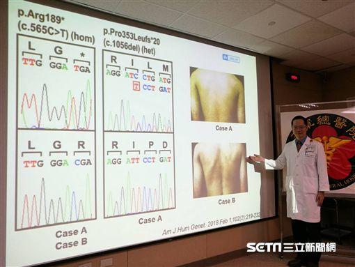 醫師江建平說明「色素異常性皮膚澱粉樣變性症」致病機轉原因。(圖/記者楊晴雯攝)