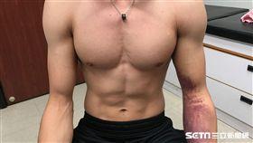 李智凱左肩疼痛腫脹僵硬,瘀傷往下沉至手肘。(圖/長庚醫院提供)