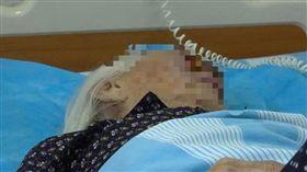 大陸老婦皮膚癌為積極治療,20年後臉部爬滿活蛆。(圖/翻攝自廣西人民廣播電台)