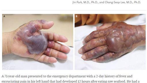 南韓71歲男子生吃海鮮,導致左手掌潰爛截肢。(圖/翻攝自the New England Journal of Medicine)
