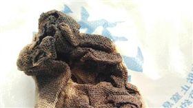 大陸河北一名34歲的賈姓女子今年5月到唐山市婦幼保健院做人工流產手術,沒想到術後她的下體頻頻傳出惡臭味,甚至還有液體流出。賈女就醫檢查後,才發現之前她做流產手術時,醫師忘記將紗布取出,而該塊紗布已發黑化膿。(圖/翻攝自法制晚報)
