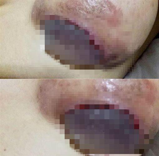 隆乳失敗!「假體」竟發黑掉出胸部 圖/泰國網