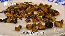 愛吃青菜不吃肉 婦體內長「爆米花」結石(圖/翻攝自看看新聞)