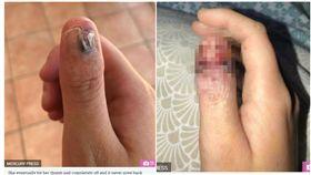 澳洲20歲女子壓力大咬指甲,卻罹患皮膚癌。(圖/翻攝自太陽報)