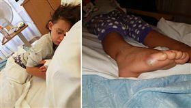 英國威爾斯一名媽媽日前帶4歲女兒買新鞋時,女童光腳試穿不少鞋子,沒想到回家後,女童竟出現發燒、抽搐等症狀。醫師檢查發現,女童罹患敗血症,所幸及時治療沒有大礙。(圖/翻攝自《Jodie Thomas》臉書)