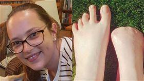 ▲庫爾瑟伊斯右腳腳趾全部截肢。(圖/翻攝自臉書、太陽報) https://goo.gl/p8L8Pv