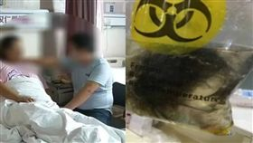 大陸22歲女卵巢畸胎瘤藏頭髮+小骨頭/騰訊.大楚網