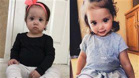 美國,明尼蘇達州,眼睛,青光眼,Axenfeld-Rieger syndrome(圖/翻攝自推特)